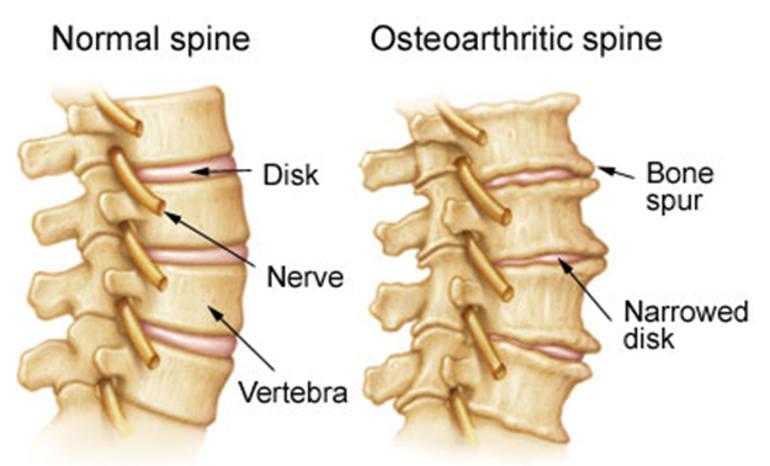 Σπονδυλαρθρίτιδα – Οστεοαρθρίτιδα: Πρωταρχική Αιτία Αναπηρίας
