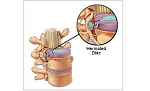 Συμπίεση νεύρου στη σπονδυλική στήλη